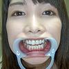 [Tooth fetish] 名ri Shiina Noriko (Tachibana Kanon) of beautiful natural tooth