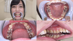 [Tooth fetish] Suzuki Riona-chan's teeth were observed!